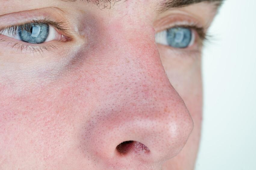 uren hud i ansigtet