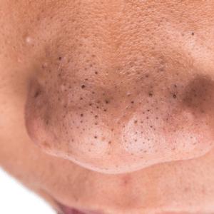 hvordan undgår man hudorme